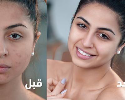 Layla Akil Sits Down With Dermatologist Dr. Malda To Talk Skincare on Mazaj